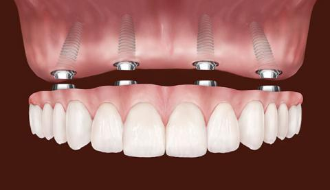 best dental implants in Chattanooga
